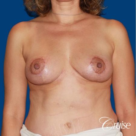 best breast reduction no implants -  After Image 1