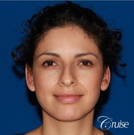 best otoplasty with natural appearance on female - After Image