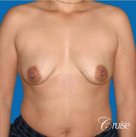 best before and after photos of young breast lift anchor scars - Before Image 1