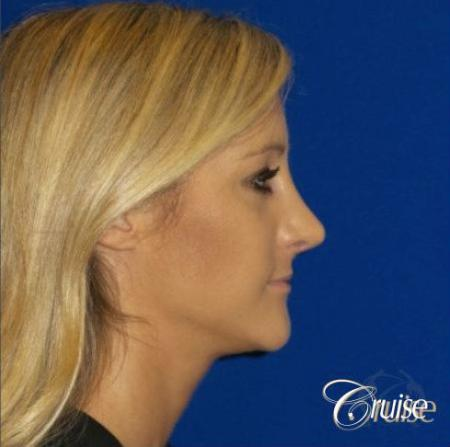 Best Rhinoplasty results Newport Beach CA -  After Image 2
