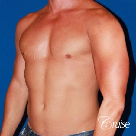 body builder with Gynecomastia puffy nipple -  After Image 3