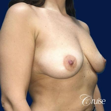 Breast Lift Anchor W/ Silicone Implants On Young Woman - Before and After Image 3