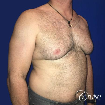 Severe Gynecomastia Correction - Before 2