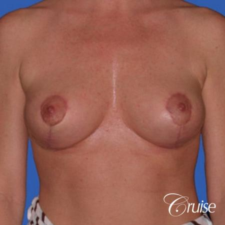 best breast reduction without implants - After Image