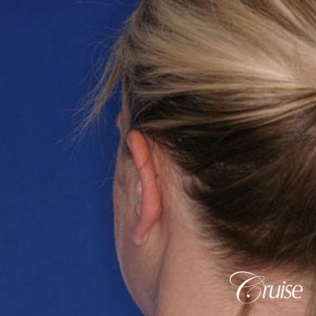 best otoplasty ear surgery by plastic surgeon in Newport Beach -  After Image 2