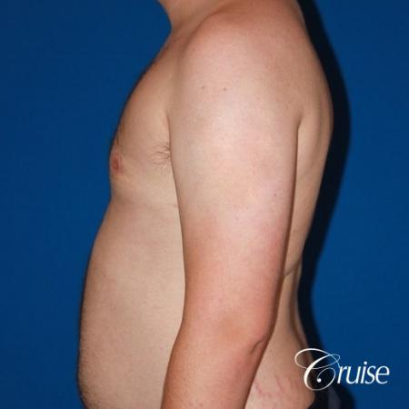 asymmetric gynecomastia moderate -  After Image 3