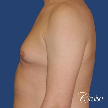 moderate gynecomastia on adult donut lift - Before Image 2