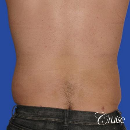 male liposuction abdomen flanks with Gynecomastia -  After Image 2