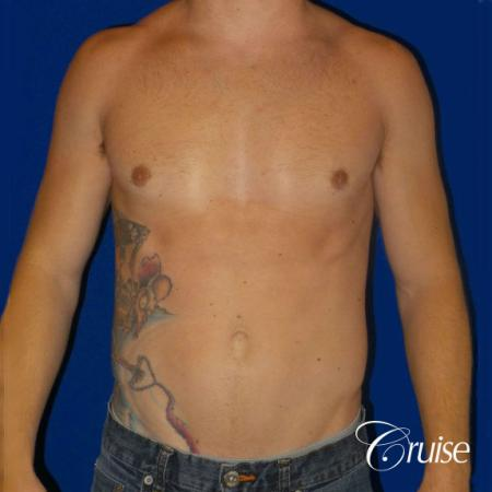 Mild Gynecomastia -Puffy Nipple -Areola Incision - After Image 1