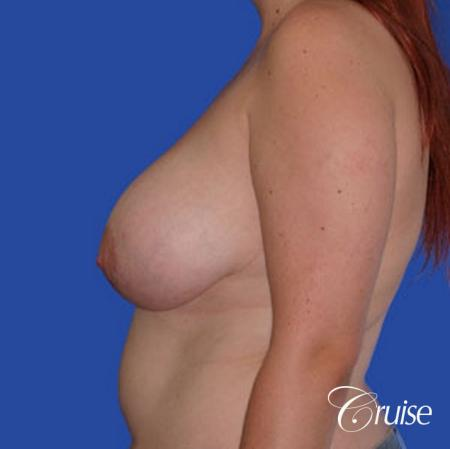 best breast reduction lift without implants newport beach - Before Image 2