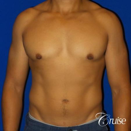 Mild Gynecomastia - Standard Areola Incision - After Image 1