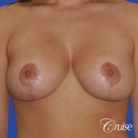 best 19 yr old breast reduction results -  After Image 1