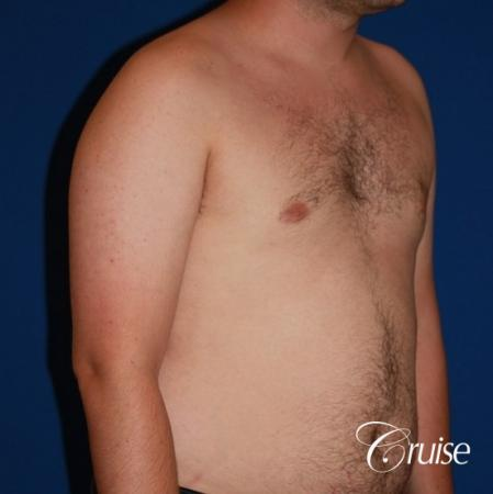 asymmetric gynecomastia moderate -  After Image 4