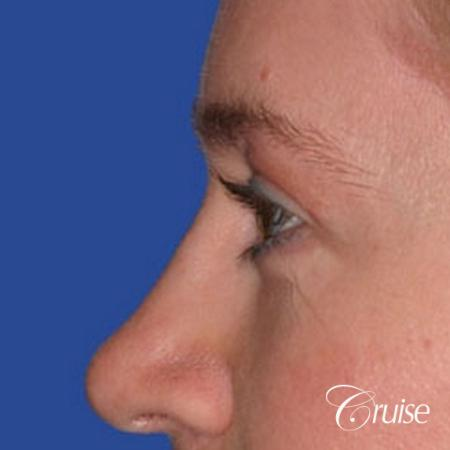 best specialist for upper eyelid surgery -  After Image 2