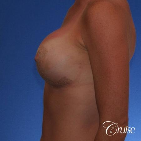 Best breast revision for low implants -  After Image 2