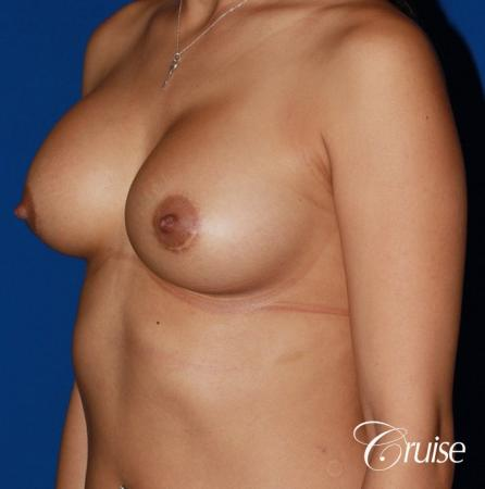 saline capsular contracture breast revision pictures - Before Image 2