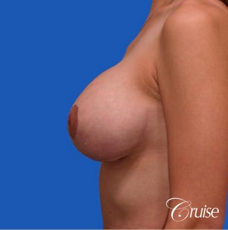 best round saline breast reduction lift surgery -  After Image 2