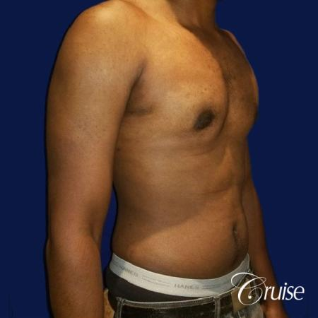 Moderate Gynecomastia -Puffy Nipple -Areola Incision - After Image 3