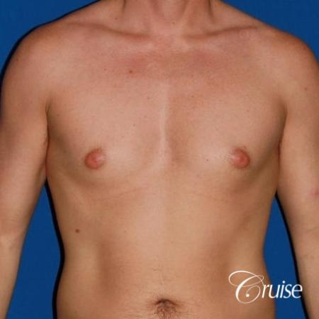 puffy nipple on low body fat - Before Image 1