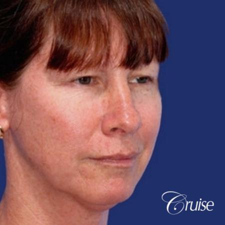52 year old with chin augmentation and facelift - Before Image 2