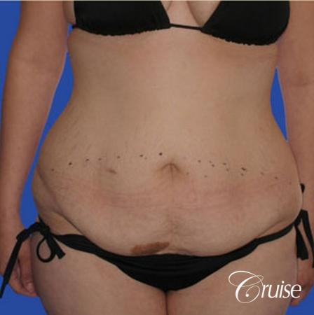 best liposuction tummy tuck - Before Image 1