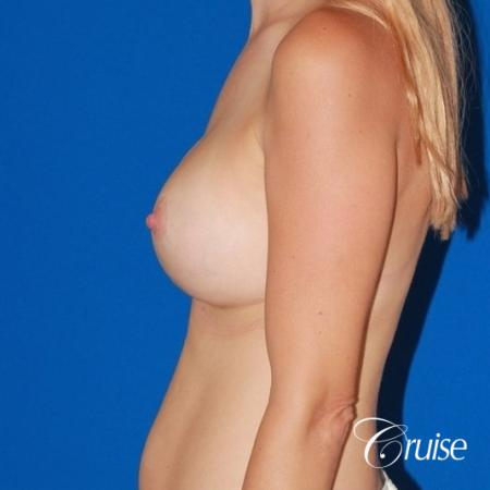 best breast lift anchor with High profile silicone 500cc implants -  After Image 2
