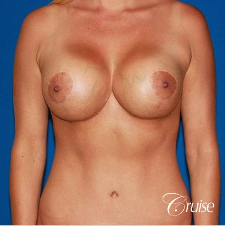 best breast lift anchor with saline implants -  After Image 1