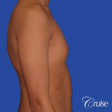 best before and after results for gynecomastia surgery - Before and After Image 3
