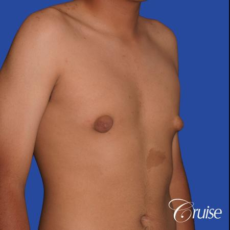 gynecomastia patient gets nipple reduction for best results - Before Image 5
