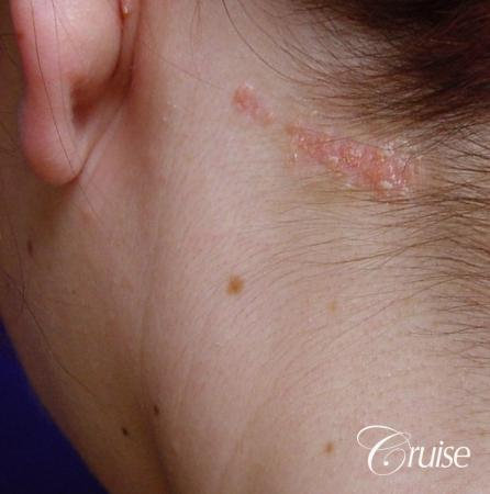 best birth mark removal scar revision - Before Image