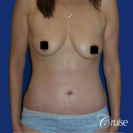 Best tummy tuck incisions orange county - After Image
