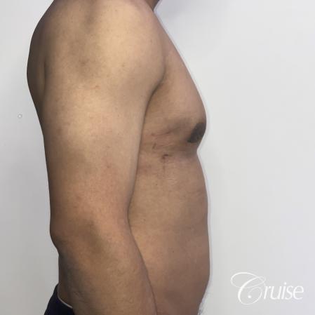gynecomastia surgery -  After 4