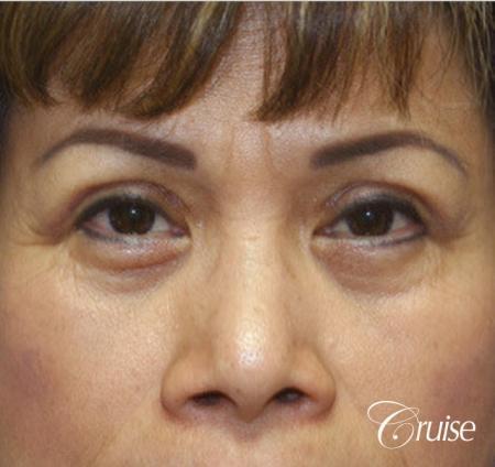 best Asian Upper eye lid plastic surgeon Newport Beach -  After Image 1