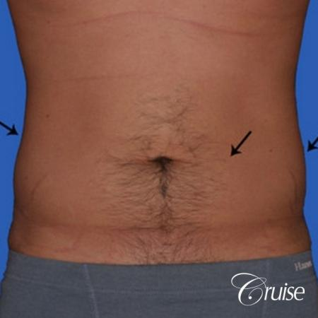 best liposuction to contour a males body - Before Image 1