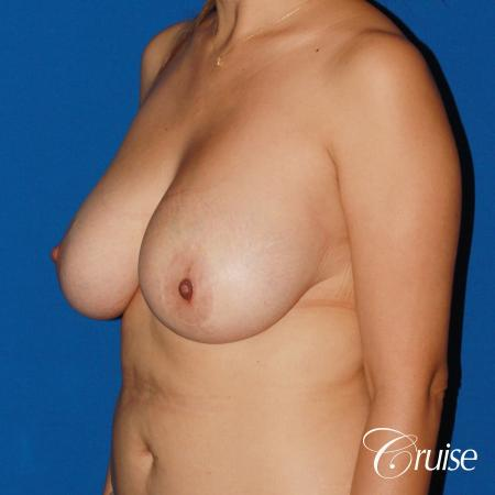 revision breast lift anchor with saline implants - Before and After Image 3