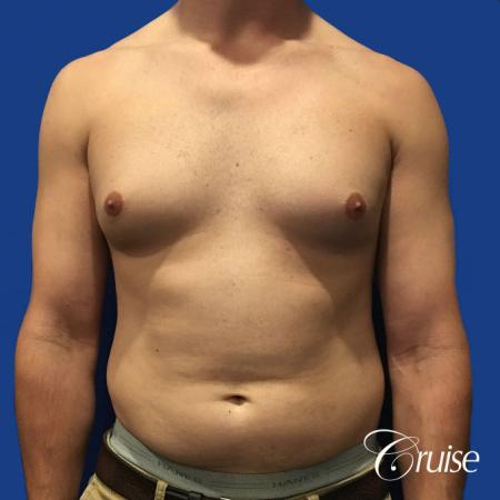 gyne before and after photos orange county ca - Before Image 1