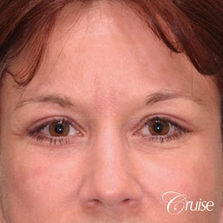 best brow temple lift pictures - After Image