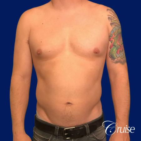 Moderate Gynecomastia -Areola Incision - Before Image