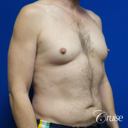 Best Gynecomastia surgeons Los Angeles - Before Image 2