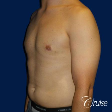 gyne before and after photos orange county ca -  After Image 2