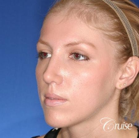 young female with large anatomic chin implant -  After Image 3