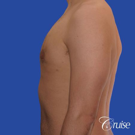 20 year old with moderate gynecomastia -  After Image 2