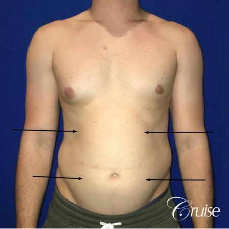 Liposuction Abdomen - Before