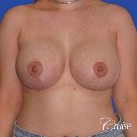 best breast reduction pictures with saline implants -  After Image 1