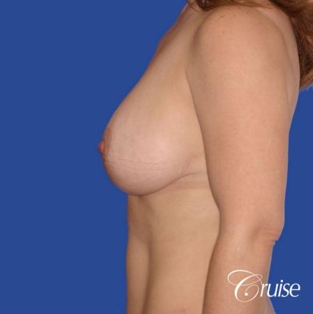 best revision to correct large breast -  After 2