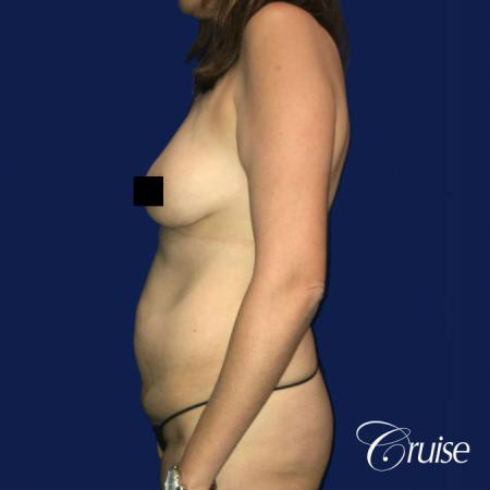Best tummy tuck incisions orange county - Before Image 3