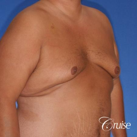 free nipple graft gynecomastia results - Before Image 2