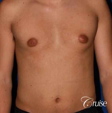 mild gynecomastia before and after with puffy nipple - Before Image 1