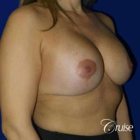 Breast Lift Anchor W/ Silicone Implants On Young Woman - After 3