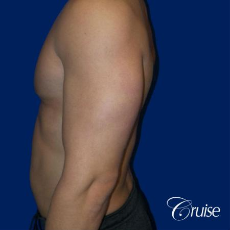 Best before and after gynecomastia pictures -  After Image 3